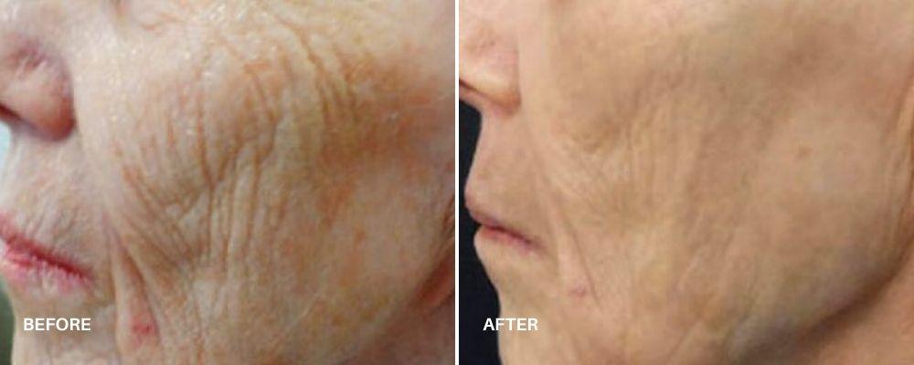 anti aging treatment